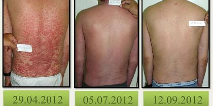 psoriase-1.jpg-1.jpg