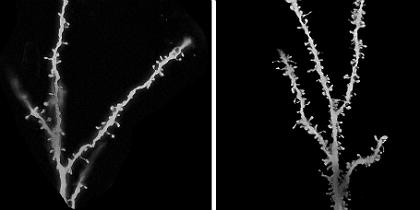 synapses2.jpg.jpg